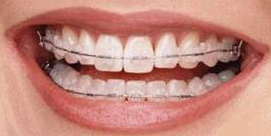 orthodontie adulte exemple