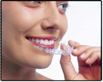 orthodontie goutière
